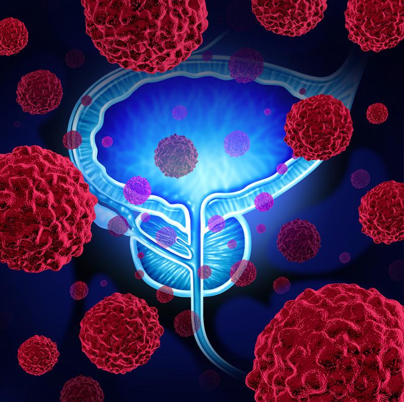 Программа «Чек-ап рака простаты»